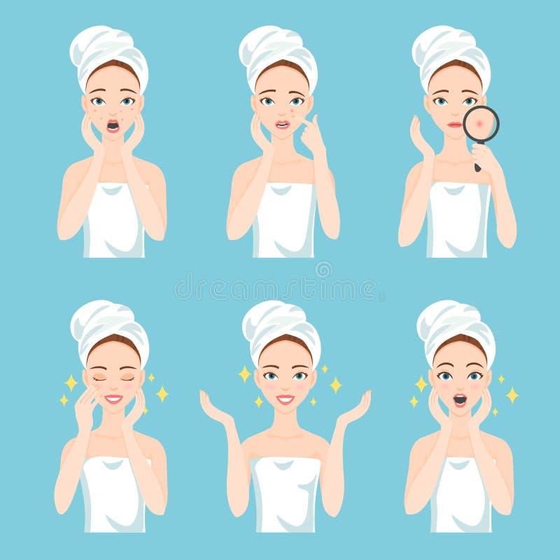在前在套翻倒和愉快的妇女以后以女性面部皮肤问题需要关心:粉刺,丘疹 向量例证