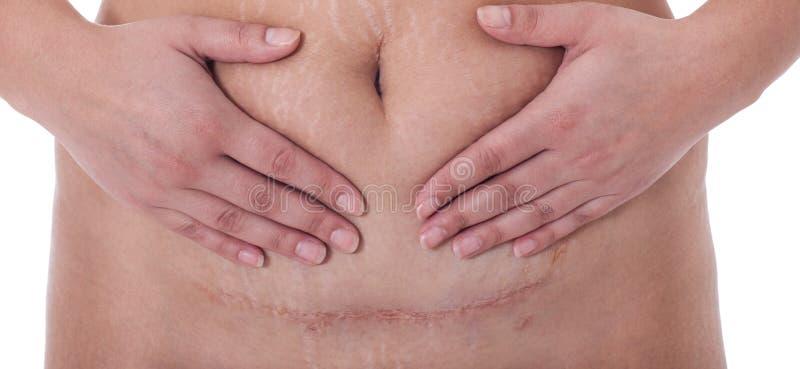 在剖腹产,比基尼泳装线以后结疤 免版税库存图片