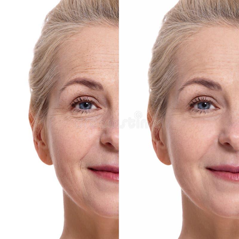 在化妆做法前后,中部年迈的阿曼面对 概念查出的整容手术白色 免版税库存照片