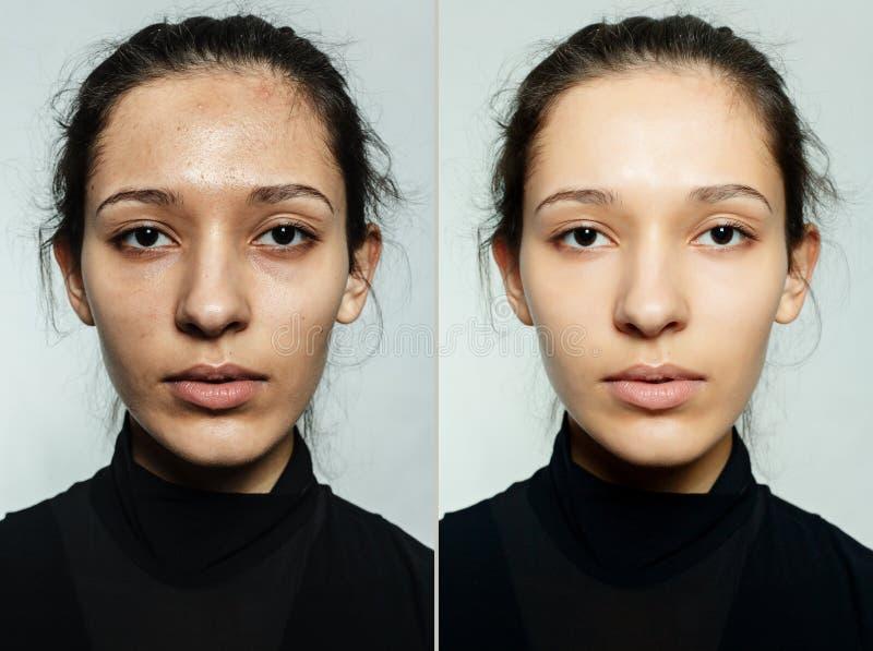 在化妆操作前后 免版税图库摄影