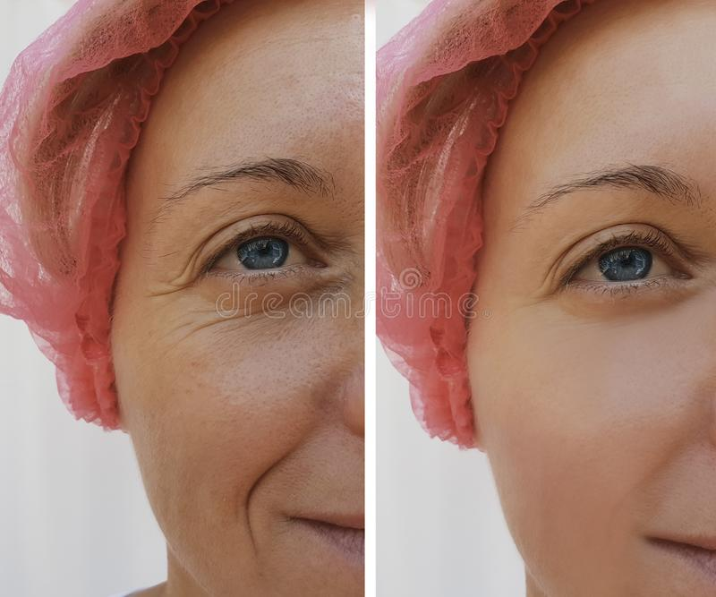 在化妆防皱做法前后,面对妇女皱痕耐心皮肤学 免版税库存图片