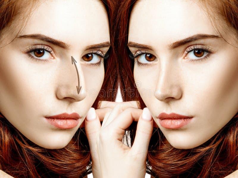 在化妆鼻子手术前后的红头发人妇女 免版税库存照片