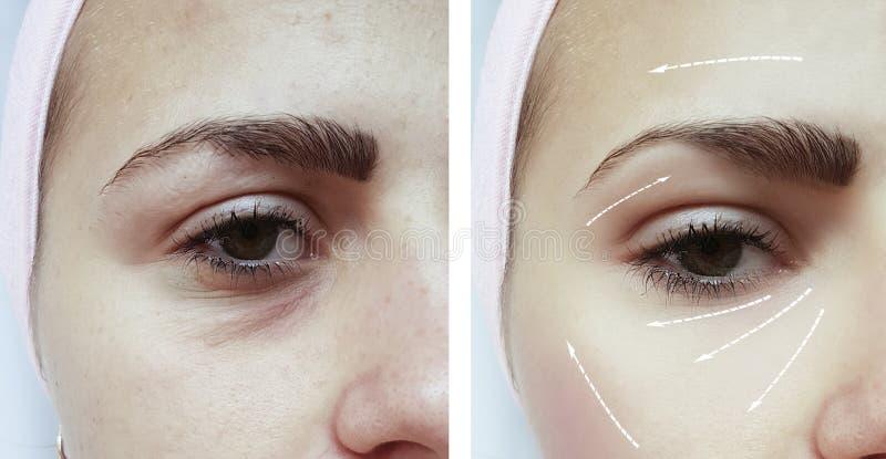 在区别做法前后的面孔女孩眼睛皱痕圆鼓的再生 免版税库存图片