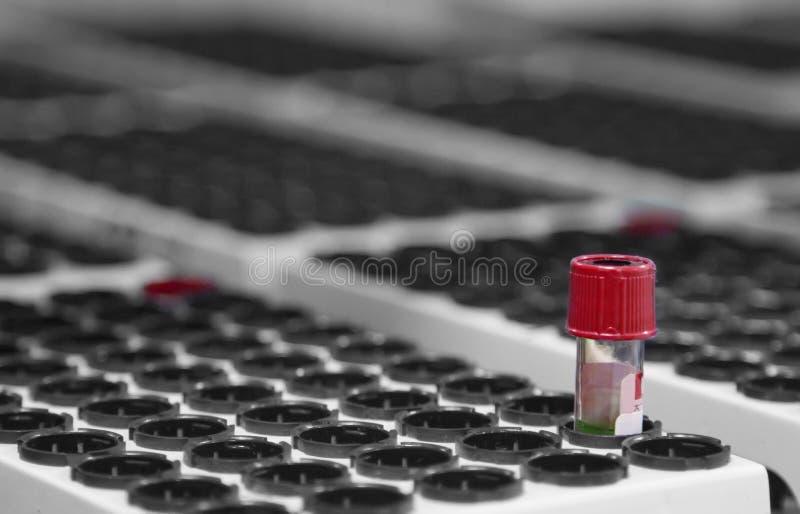 在医学实验室 红色样品血液管 免版税库存图片