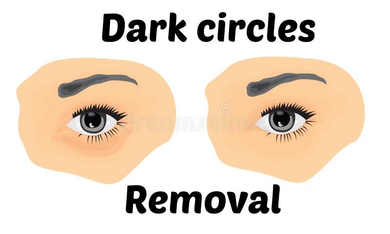 在去除的眼睛下的黑暗的圈子 库存例证