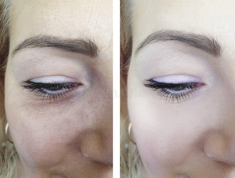 在反眼睛举的治疗的治疗前后的妇女成人皱痕,变老的做法 图库摄影