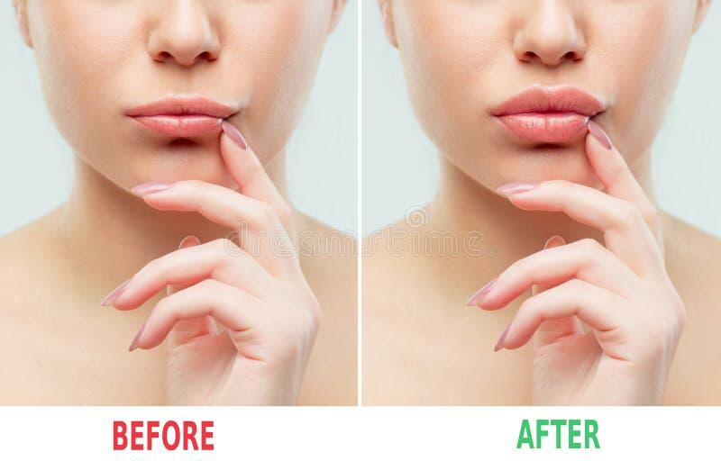 在嘴唇补白射入前后 秀丽塑料 有自然构成的美丽的完善的嘴唇 免版税库存照片