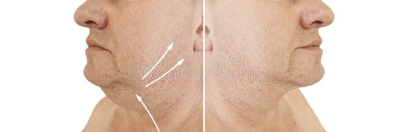 在塑料审美治疗前后的男性双下巴举的下垂的治疗肥胖病拼贴画 库存照片