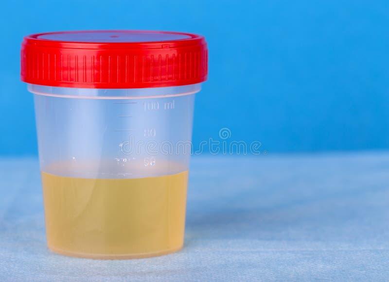 在塑胶容器的医疗尿检 免版税库存图片