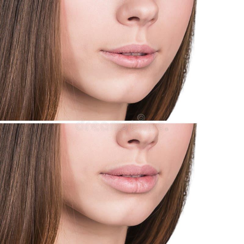 在增广前后的女性嘴唇 免版税库存图片