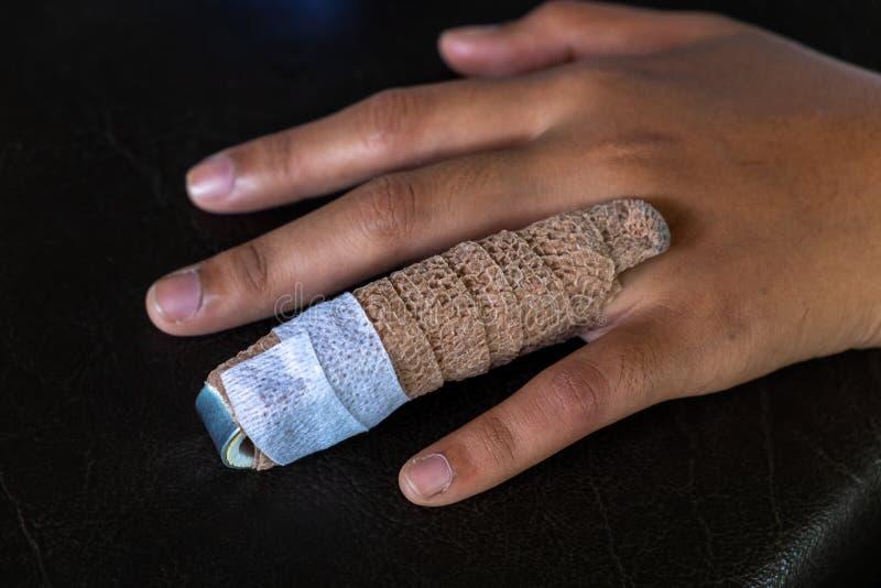 在妇女无名指的铝手指藤条,飞翅的治疗 免版税库存图片