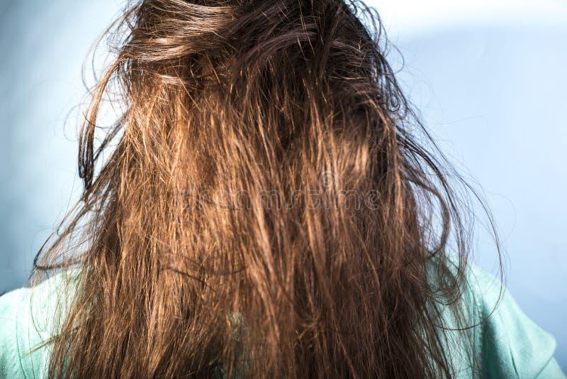 在妇女的油腻的头发问题 肮脏的头发 问题皮肤听见 库存图片