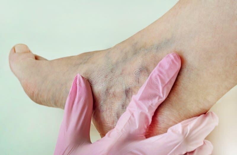 在妇女腿的静脉曲张关闭  免版税库存照片