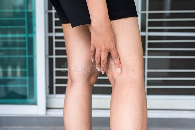 在妇女腿的静脉曲张,在皮肤层数附近的正常静脉鼓起 免版税库存照片