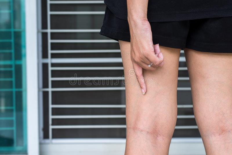 在妇女腿的静脉曲张 免版税库存照片