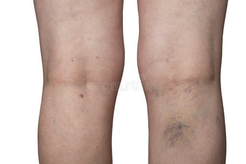 在妇女腿的Bursted血丝 免版税图库摄影