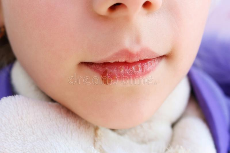 在孩子的嘴唇的疱疹 治疗软膏 免版税库存照片