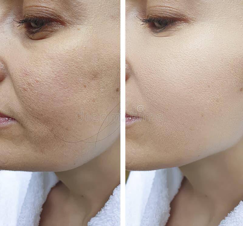 在对比治疗前后,妇女皱痕面对结果更正举的等高紧张 库存图片