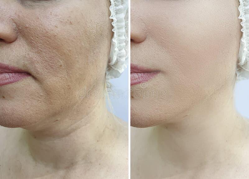 在对比治疗前后,妇女皱痕面对结果更正等高紧张 免版税库存照片