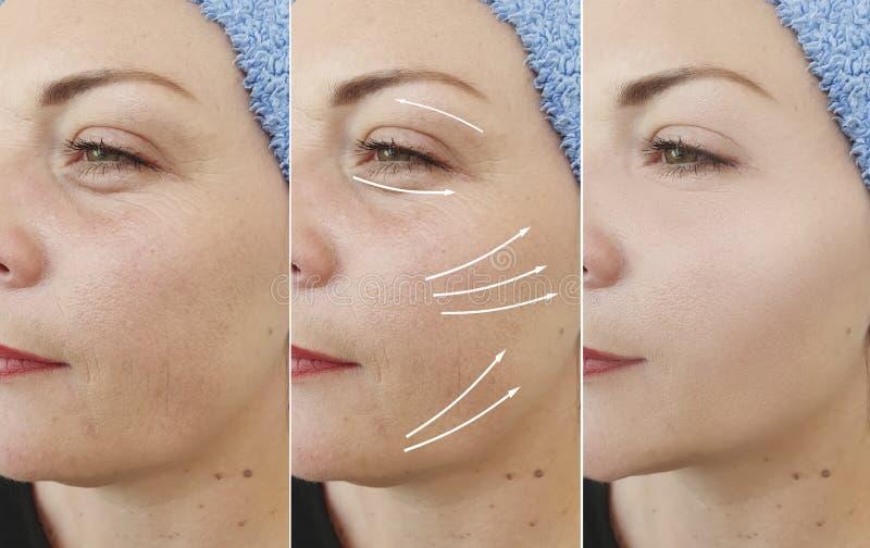 在对比治疗前后,妇女皱痕面对结果箭头拼贴画举的等高紧张 免版税库存照片