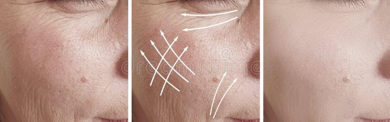 在对比治疗前后,妇女皱痕面对结果箭头更正举的等高紧张 免版税库存图片