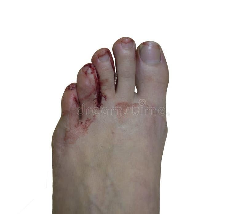 在小新的远足的鞋子造成的妇女脚的痛苦的血泡手指,隔绝在白色背景,顶视图 免版税库存照片