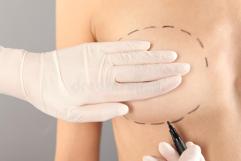 在患者的乳房的医生画的标记反对灰色背景的整容操作的 免版税库存图片