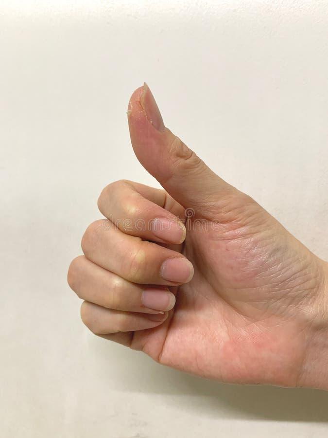 在手和手指上的皮肤剥皮,剥表皮,晾干皮肤,在白色背景的激动的癞 库存图片