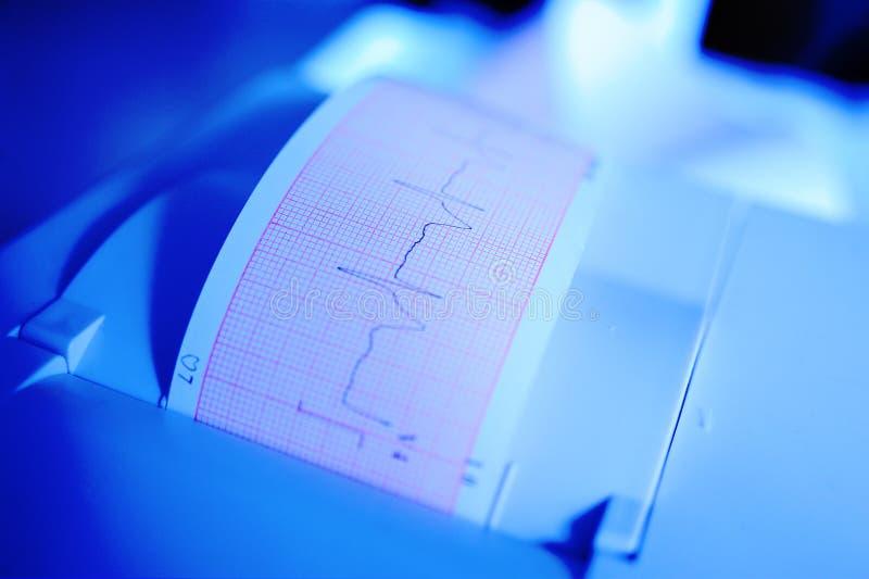 在护士的心电图递特写镜头 免版税库存照片