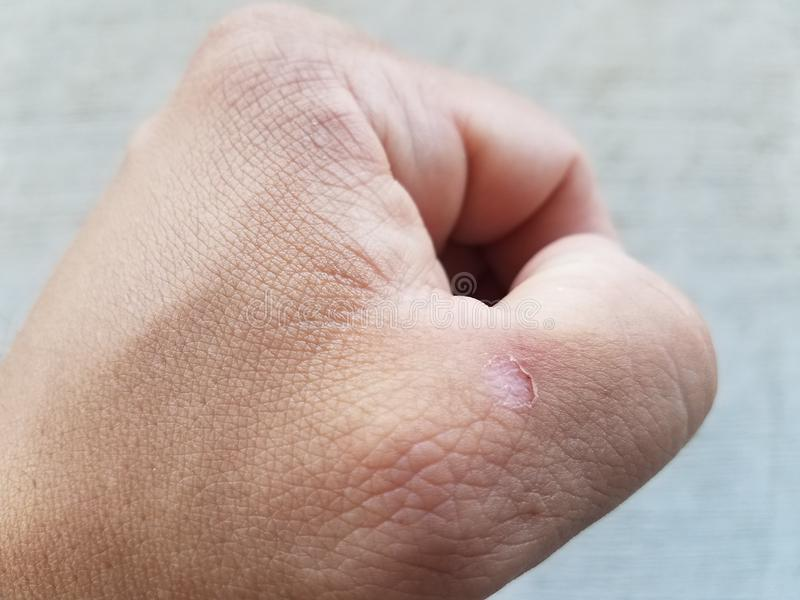 在拇指附近供以人员有水泡的` s拳头 免版税库存照片