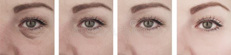 在撤除区别前的女性年长眼睛皱痕在举的更正做法以后 库存照片