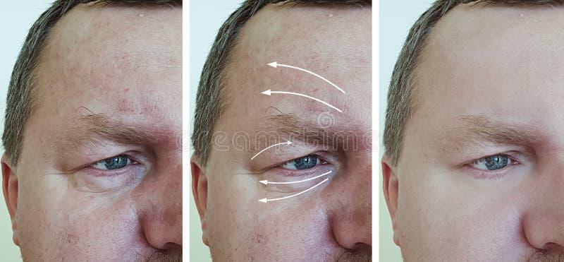 在撤除correctio再生n做法前后的男性面孔皱痕 免版税库存照片