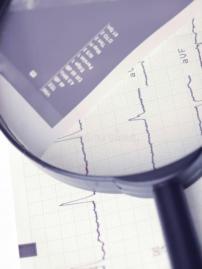 在放大镜的心电图 免版税图库摄影