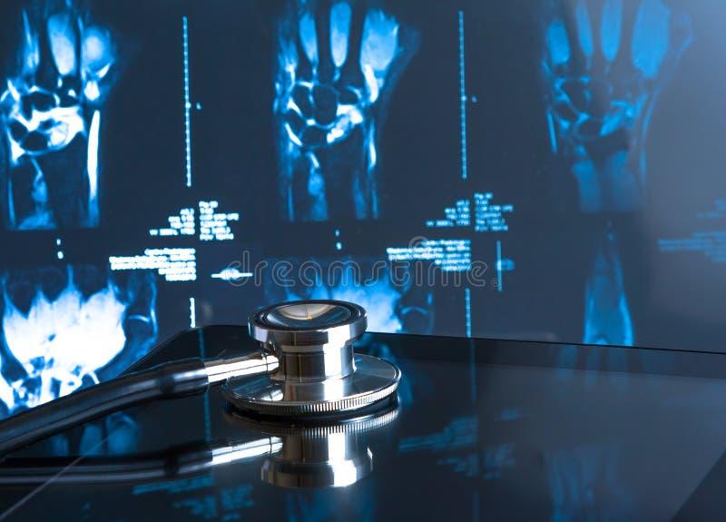 在数字式片剂个人计算机的听诊器在X-射线图象 图库摄影