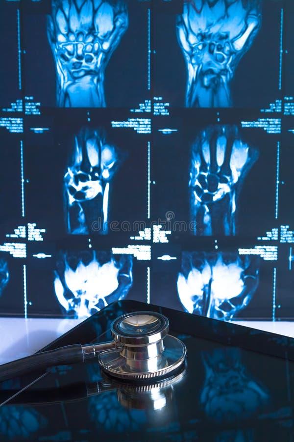 在数字式片剂个人计算机的听诊器在X-射线图象 免版税图库摄影