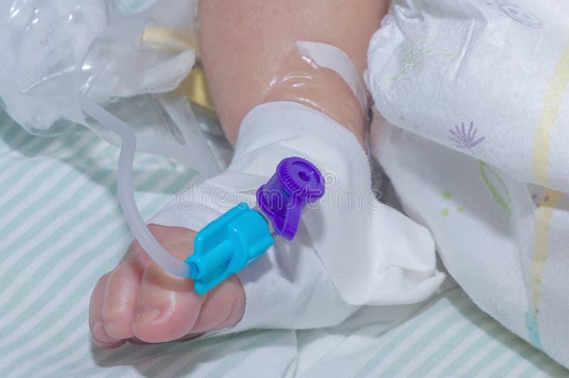 在新出生的婴孩脚静脉的周边静脉内导尿管  库存照片