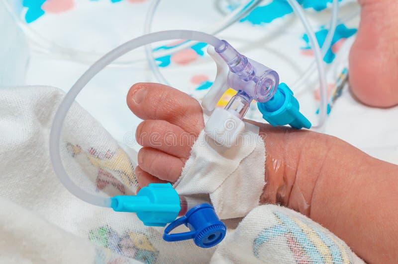 在新出生的婴孩脚静脉的周边静脉内导尿管  免版税库存图片
