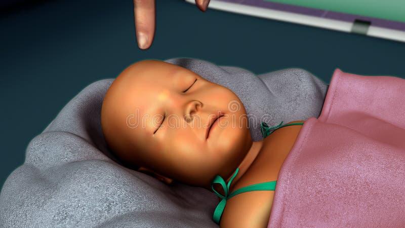 在新出生的黄疸 免版税库存照片