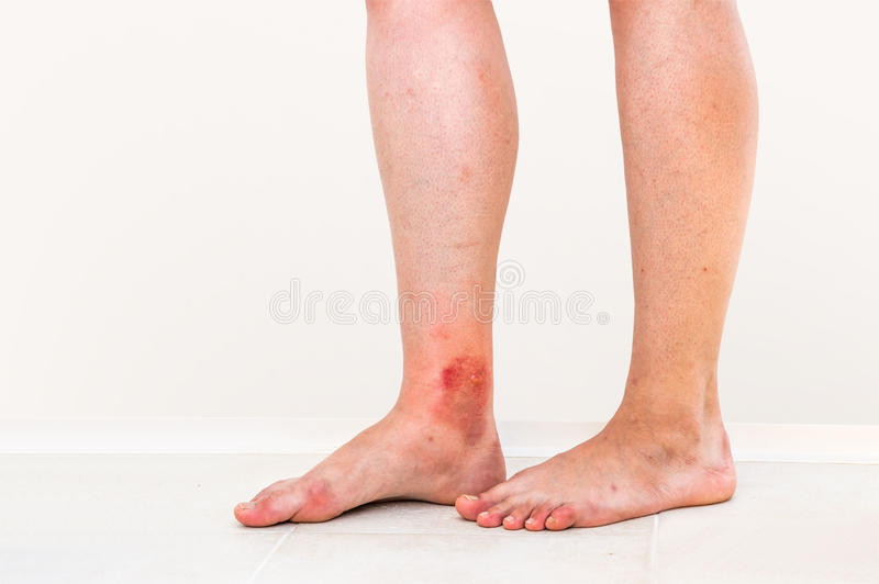 在昆虫咬住患者的腿的红色疹 库存照片