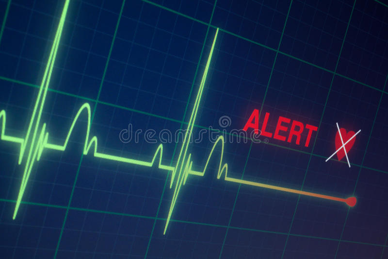 在显示器的心跳心电图 免版税库存照片
