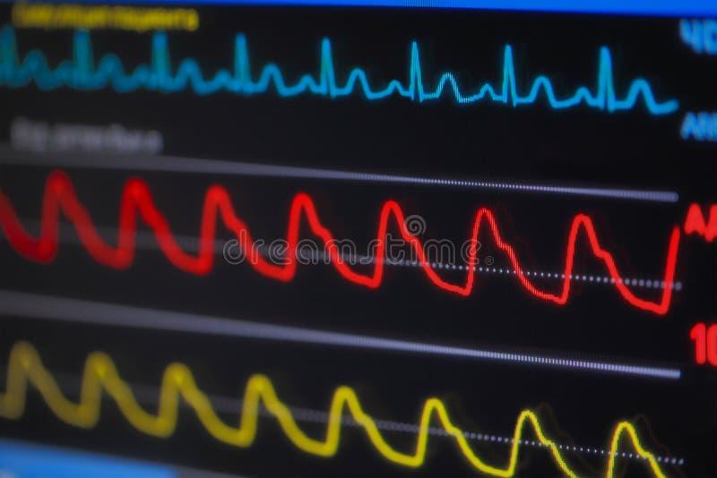 在显示器的波浪ECG在透视 免版税库存照片
