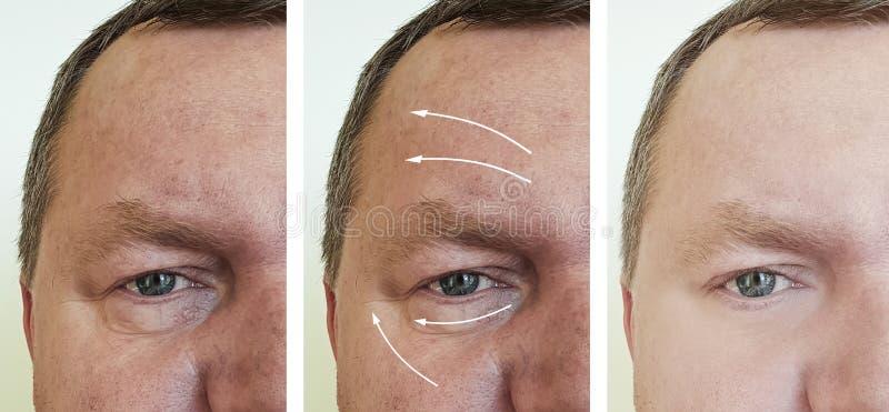 在更正做法前后的男性面孔皱痕 免版税库存照片