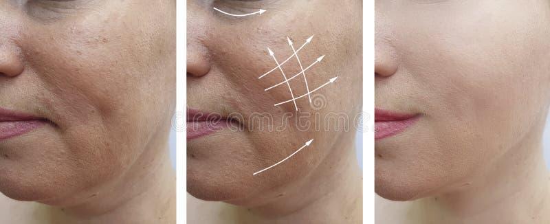 在更正做法前后的白种人妇女皱痕作用胶原更正biorevitalization治疗 库存照片