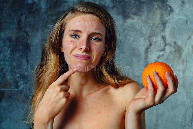 在桔子的过敏 免版税图库摄影