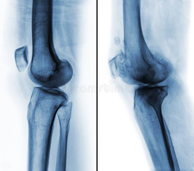 在正常人的膝盖& x28之间的比较;左图象& x29;并且骨关节炎膝盖& x28;正确的图象& x29; 侧向看法 库存例证