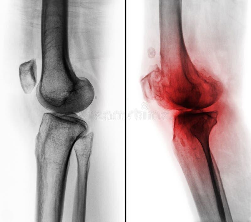 在正常人的膝盖& x28之间的比较;左图象& x29;并且骨关节炎膝盖& x28;正确的图象& x29; 侧向看法 免版税库存图片