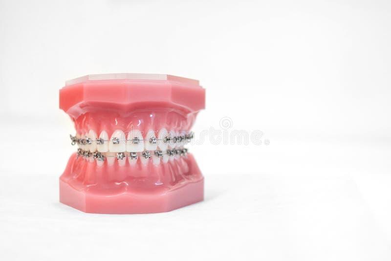 在正牙学托架或括号牙模型的括号  库存照片