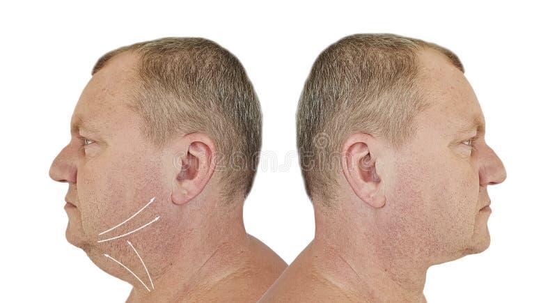 在治疗前后的男性双下巴 免版税库存照片