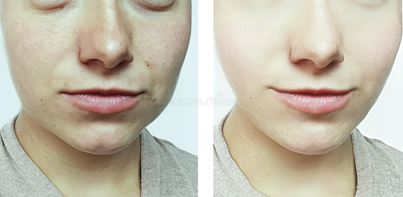 在治疗前后,妇女面孔起皱纹疗法患者 库存图片