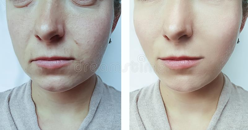 在治疗前后,妇女面孔起皱纹疗法 免版税图库摄影